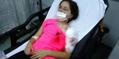 Havza'da Pitbull 11 Yaşındaki Kıza Saldırdı